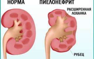 Почему нитроксолин не помогает от цистита