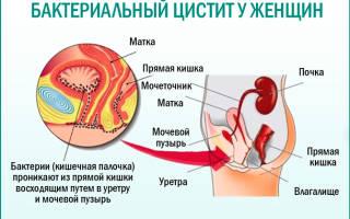 Цистит цифорал антибиотик от цистита