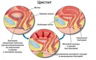 Препараты для лечения цистита у пожилых людей
