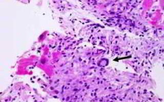 Цистит при онкологии как лечит