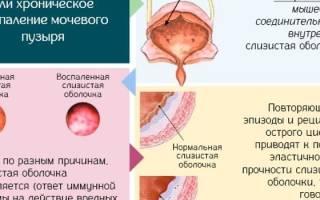 Операция при цистите у мужчин