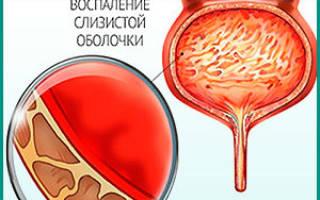 Цистит мочевого пузыря как определить