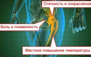 Цистит и боли в тазобедренном суставе