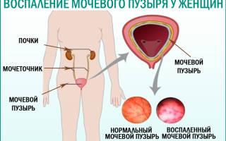 Таблетки при цистите у женщин ципрофлоксацин