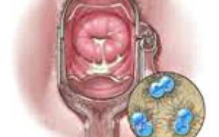 Гонорейный цистит у женщин лечение