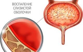 Цистит у женщин симптомы уретрита