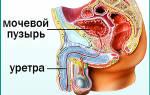 Как болит цистит у мужчин симптомы и лечение лекарства народные средства