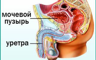 Народная медицина при цистите у мужчин