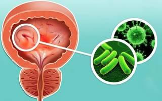 Частые циститы у женщин причины лечение