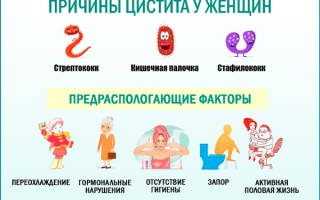 Цистит у женщины какие симптомы
