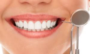 Коррекция зубов: виниры, люминиры и их отличия