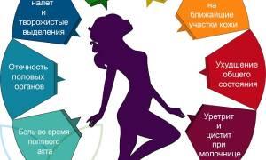 Молочница (кандидоз у женщин). Симптомы, причины, диагностика и лечение молочницы.