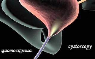 Обязательно ли делать цистоскопию при цистите