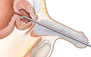 Лечение аденомы простаты и цистита