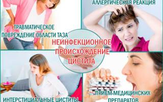 Лечение цистита у женщин препараты фурадонин отзывы