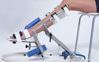 Механотерапия и разработка суставов с помощью аппарата: что это?
