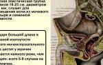 Болезнь цистит мочевого пузыря лечение