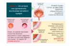 Симптомы хронического и острого цистита