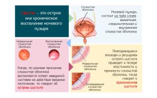 Лекарственные препараты для лечения хронического цистита