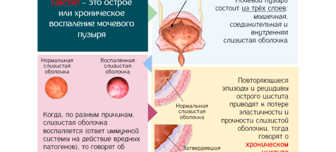 Таблетки при обострении хронического цистита