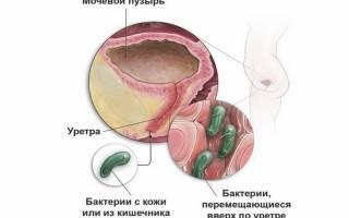 Цистит и хламидиоз лечить одновременно