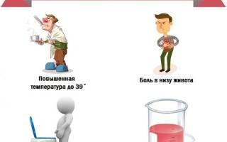 Первые признаки цистита у мужчин и лечение
