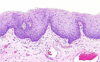 Цистит с очагами плоскоклеточной метаплазией