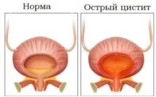 Народные средства пшено при лечении цистита