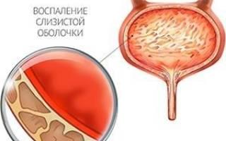 Лечение цистита при беременности укропом